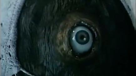 otik eye