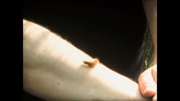 un gusano camina por su brazo.jpg